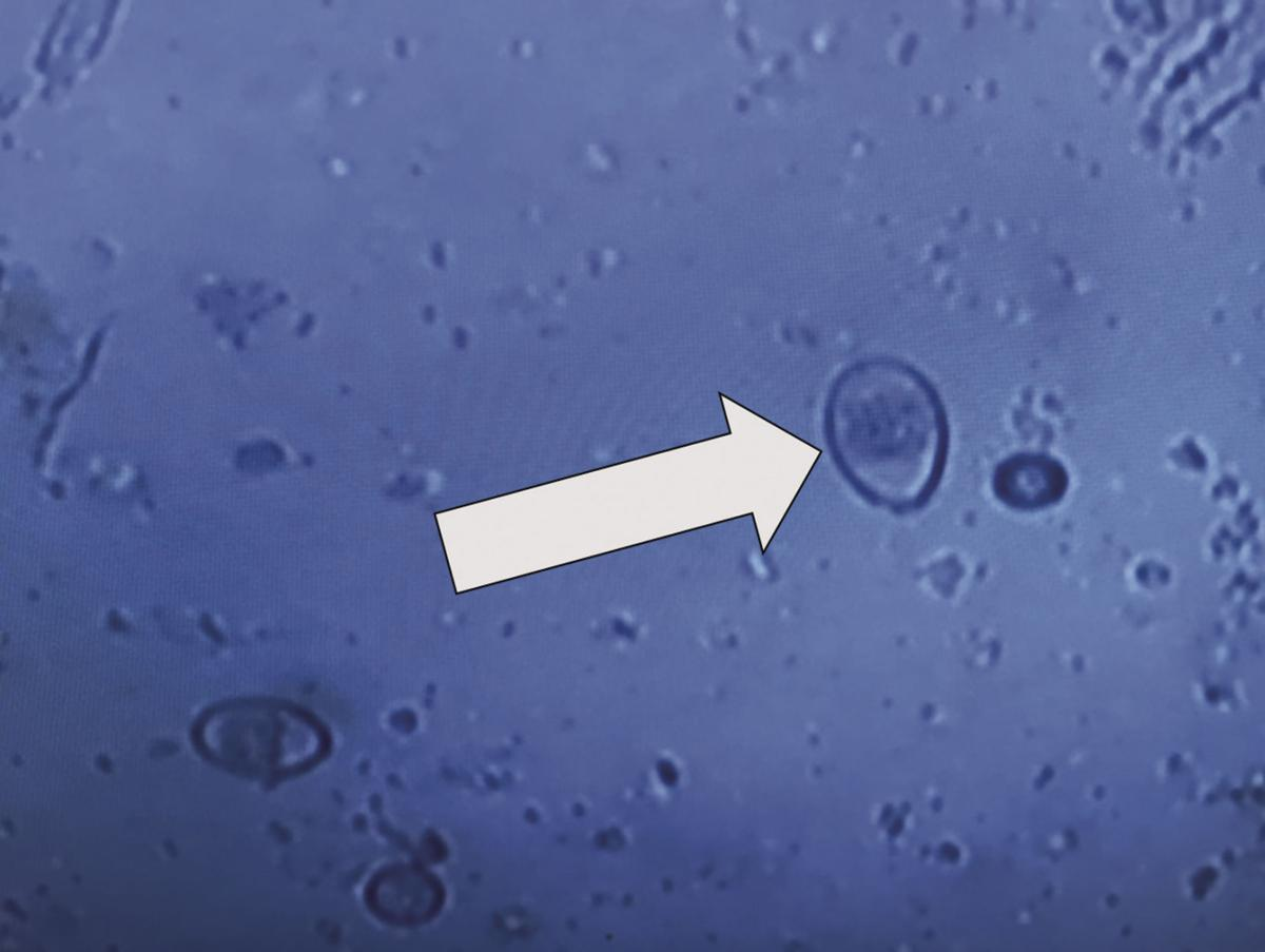 Vet's Voice: Coccidiosis caused by host-specific protozoan organisms