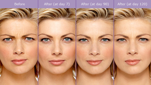 Botox1BeforeAfterPhoto.png