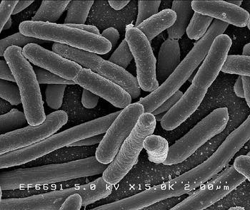 e.coli_medium.jpg
