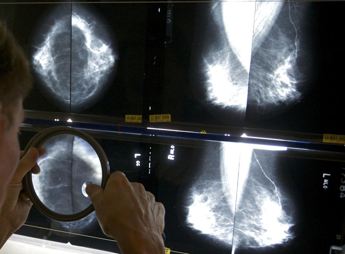Mammograms Standards