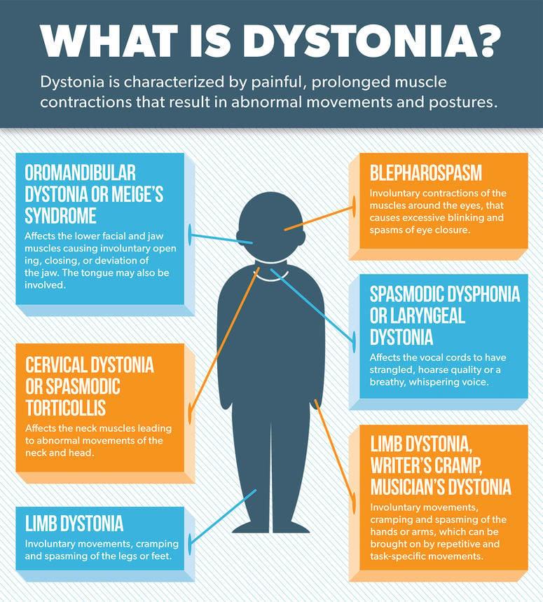 dystonia-infographic-1628.jpg