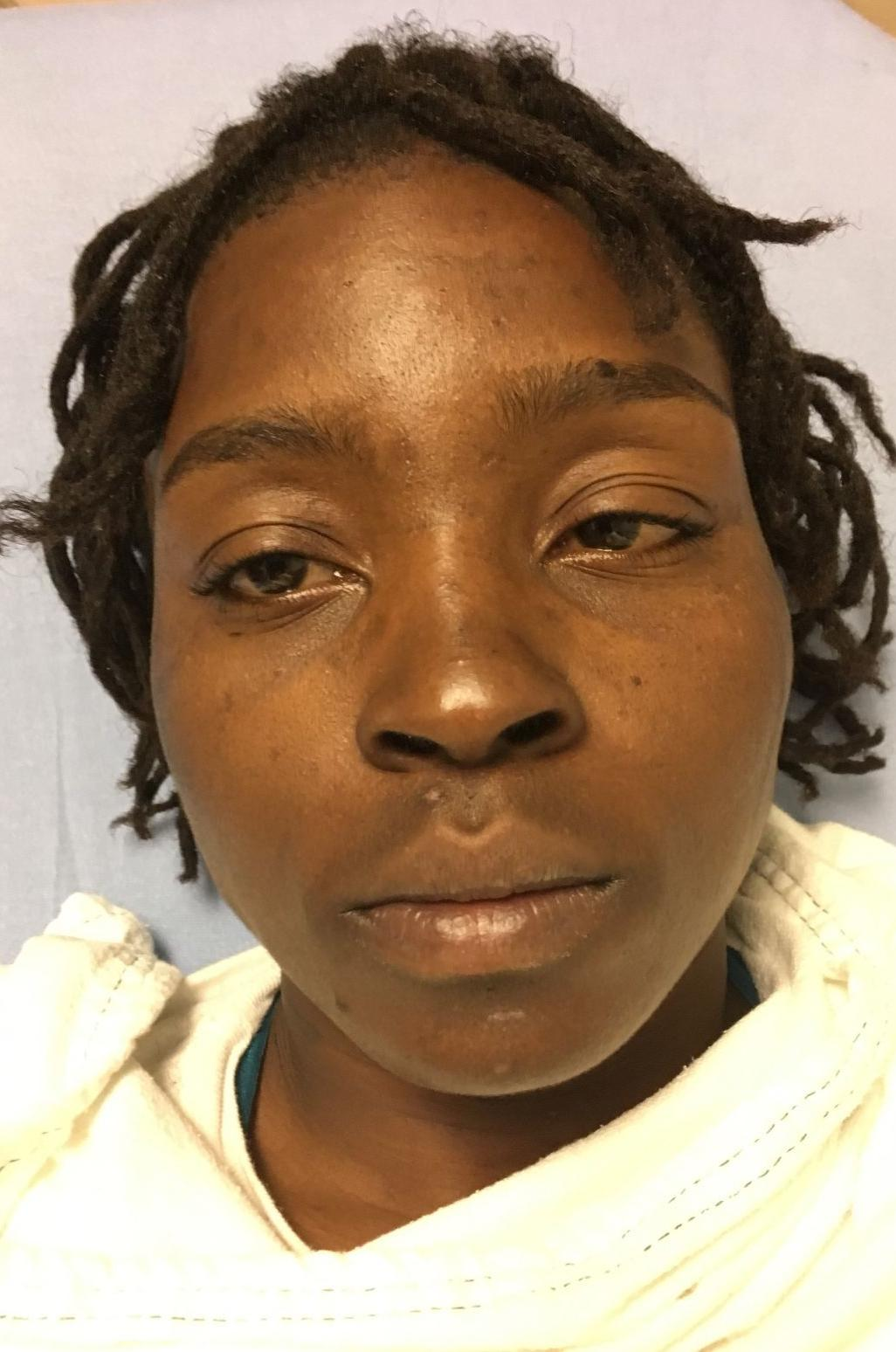 Woman arrested in string of animal mask robberies in Attleboro