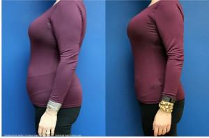 Medical weight loss now at Head To Toes Salon