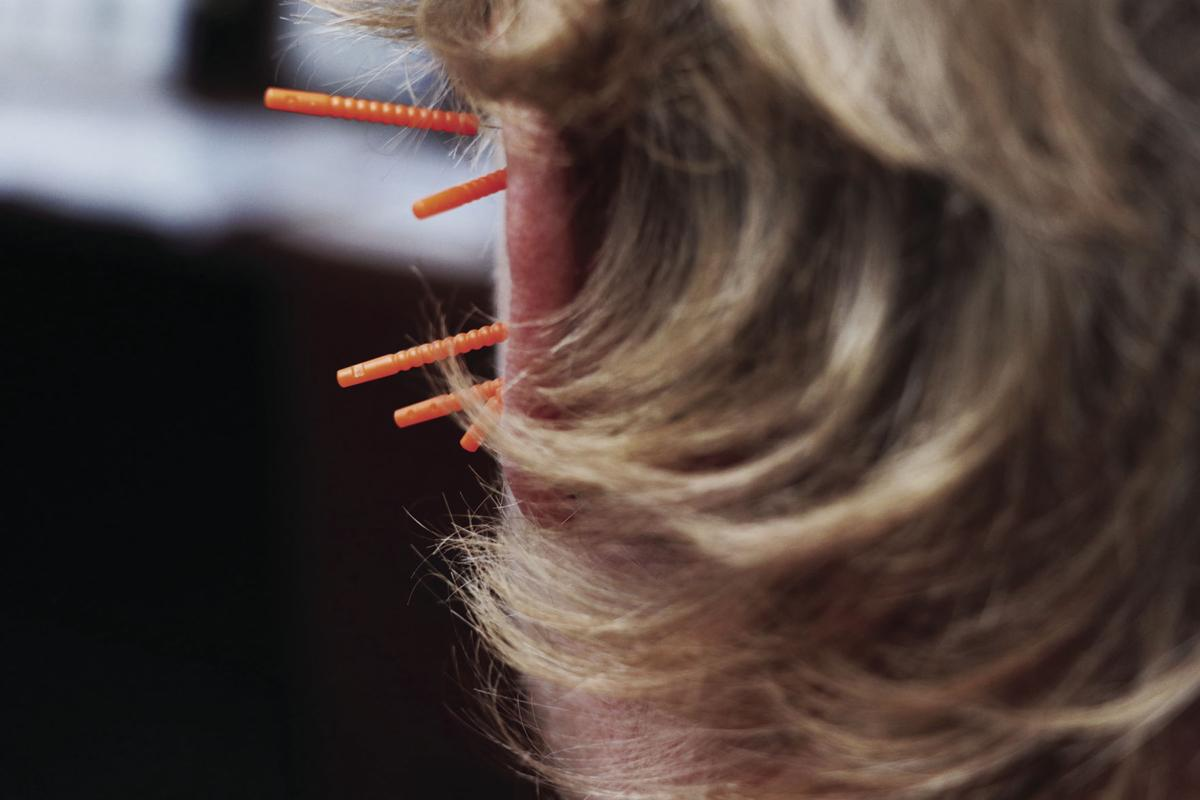 Acupuncture eases addiction