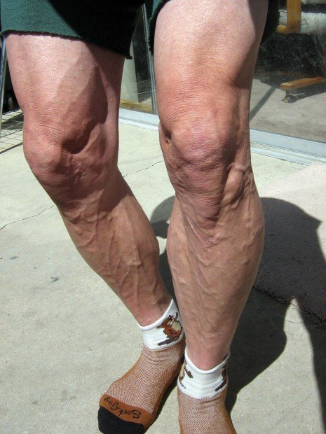 Guy with shaved legs