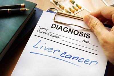 mayo-liver-20201105