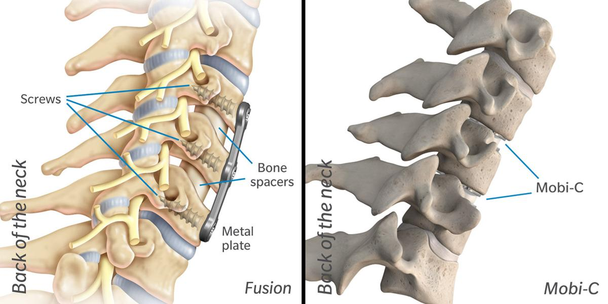 Health Matters | New cervical disc treatment offers quicker recovery ...
