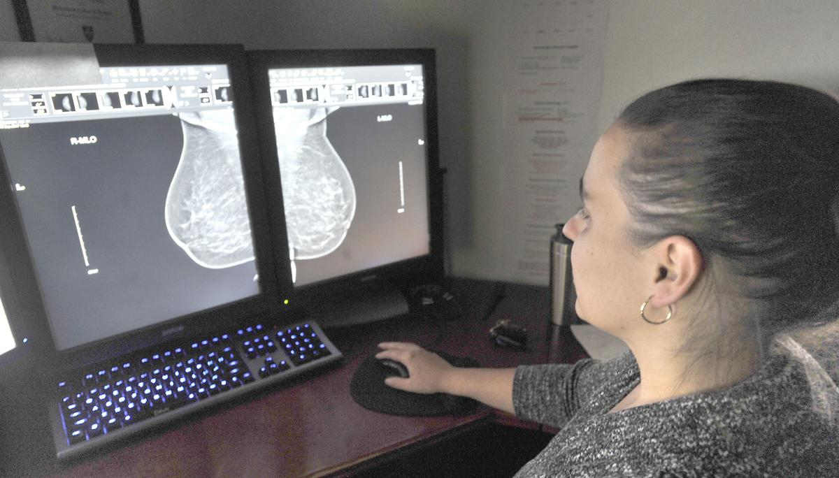 'Gold standard' – Regular screening still key for early detection of breast cancer