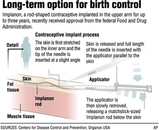 Tucson In The 70s >> 3-year birth-control option near   Health and Medicine   tucson.com