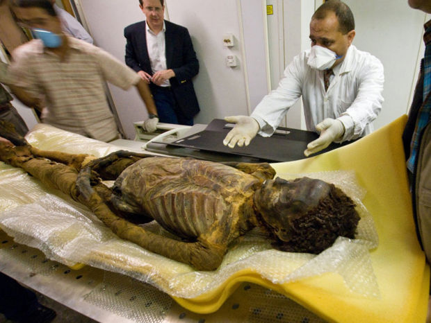 Even the ancients had clogged arteries, mummy study finds