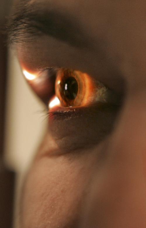 Glaucoma screening