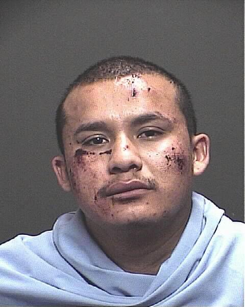 Tucson burglary suspect gets beating from homeowner