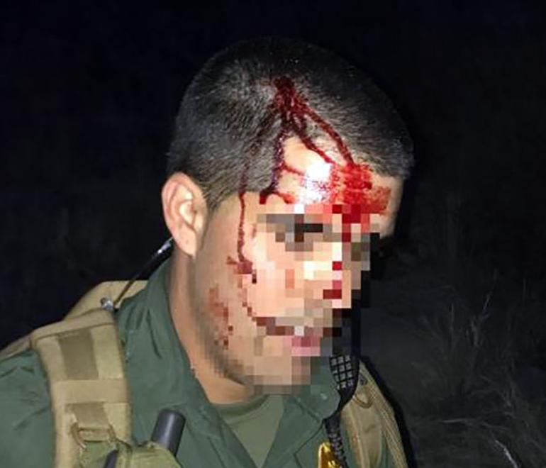 Tucson Sector Border Patrol: Immigrant smashed agent's head into rock