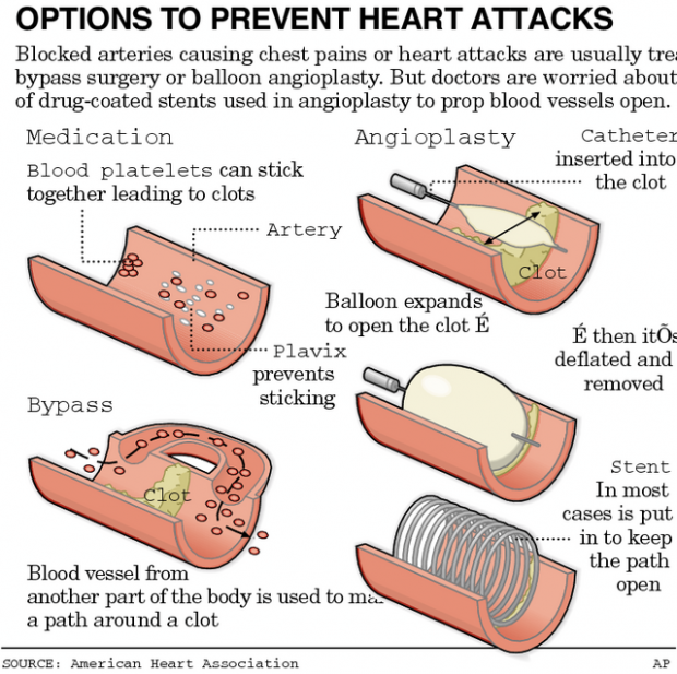 Safety of drug-coated stents in question for clot connection