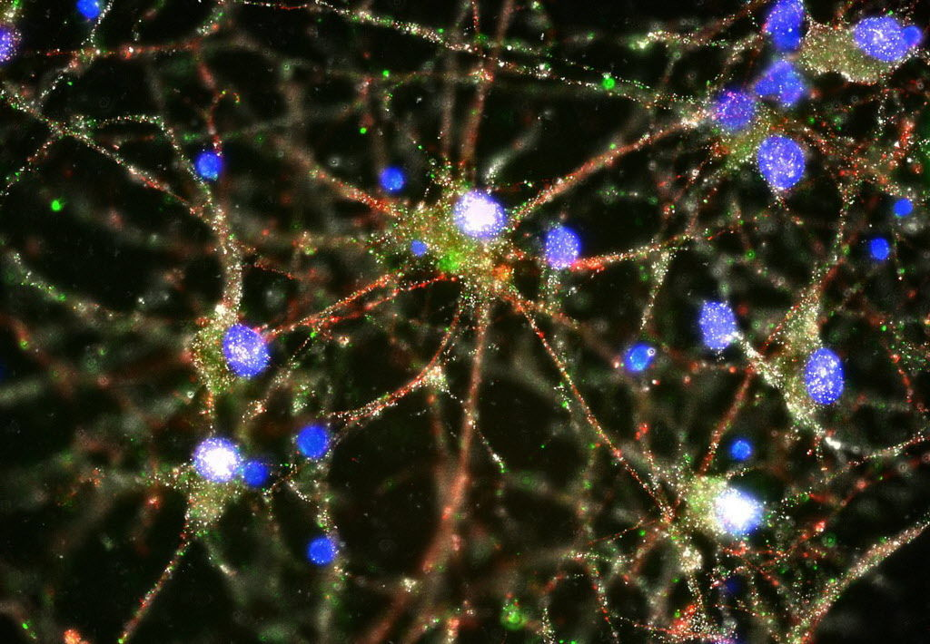 Study hints at biology of schizophrenia, may aid treatment
