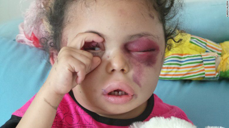 Viral photo of girl injured in Yemen attack