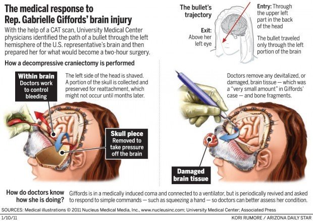 The medical response to Rep. Gabrielle Giffords' brain injury