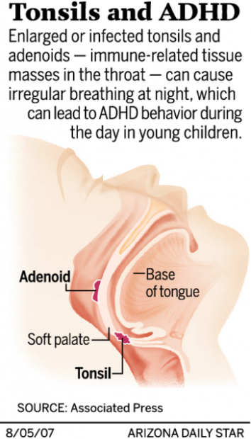 tonsil removal may cure adhd behavior in kids health and medicine