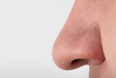 A Man Has A Wide Fleshy Big Nose, Close-up. Nose Reduction Plastic Surgery Concept, Copy Space For T