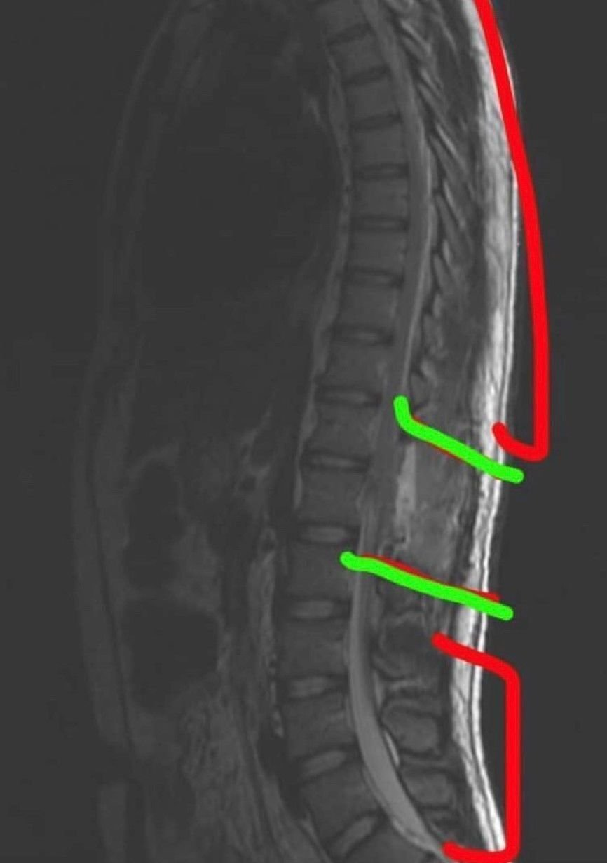 Storbeck MRI
