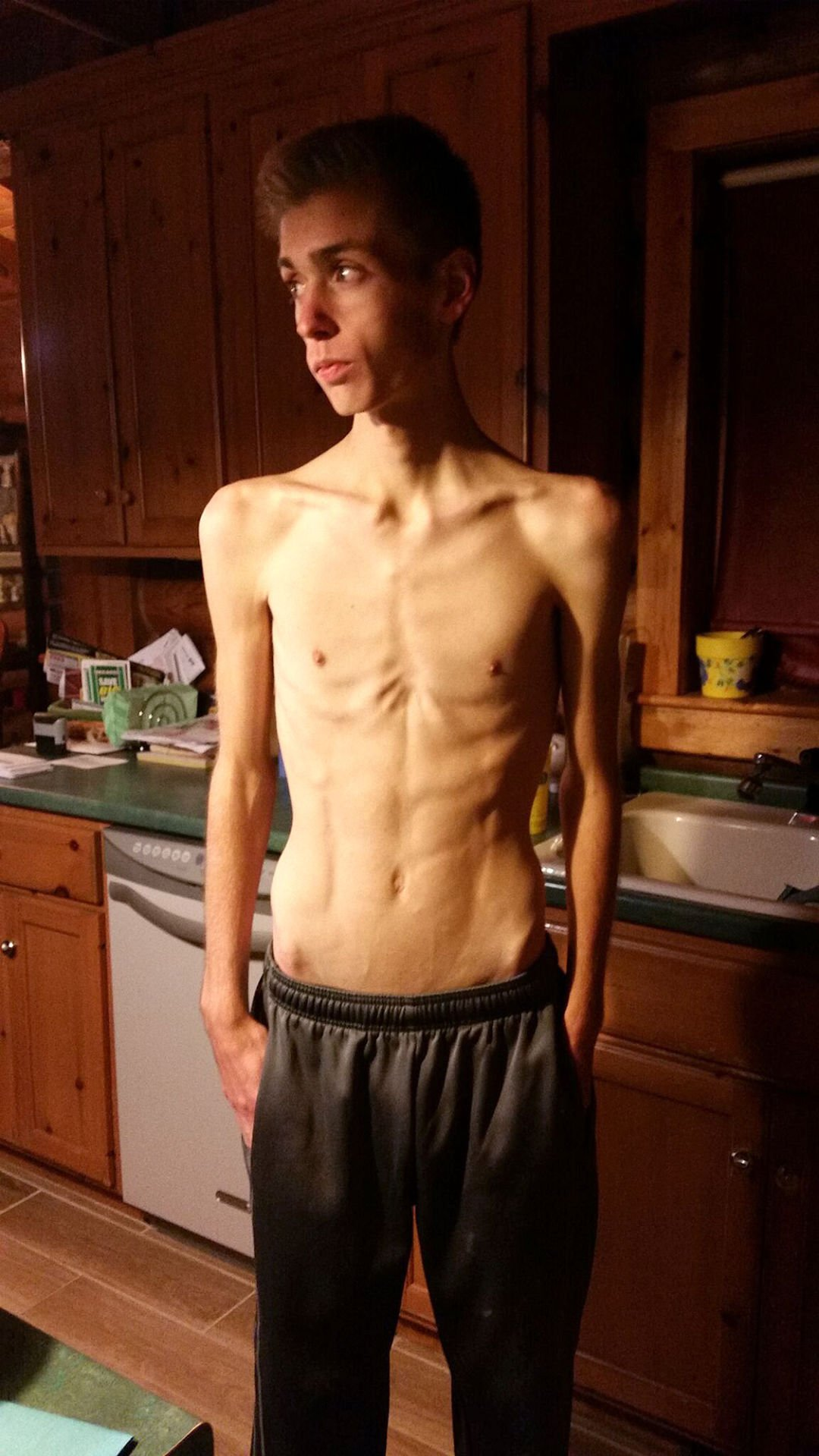 Tanner's tribulations: A young man's battle with anorexia nervosa