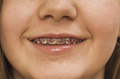 Tips for making braces more comfortable