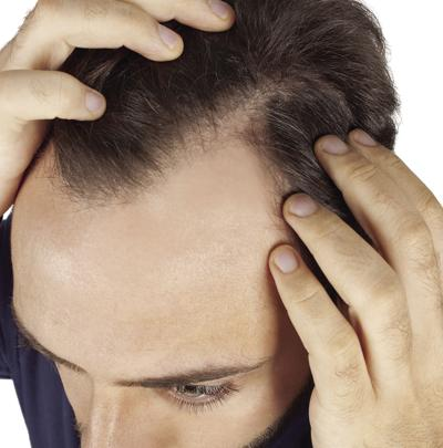 Common causes of hair loss and treatment options