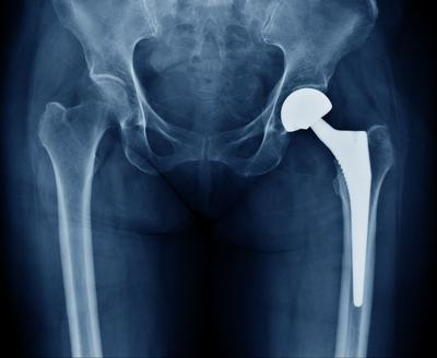 WVU Medicine - Hip Replacement
