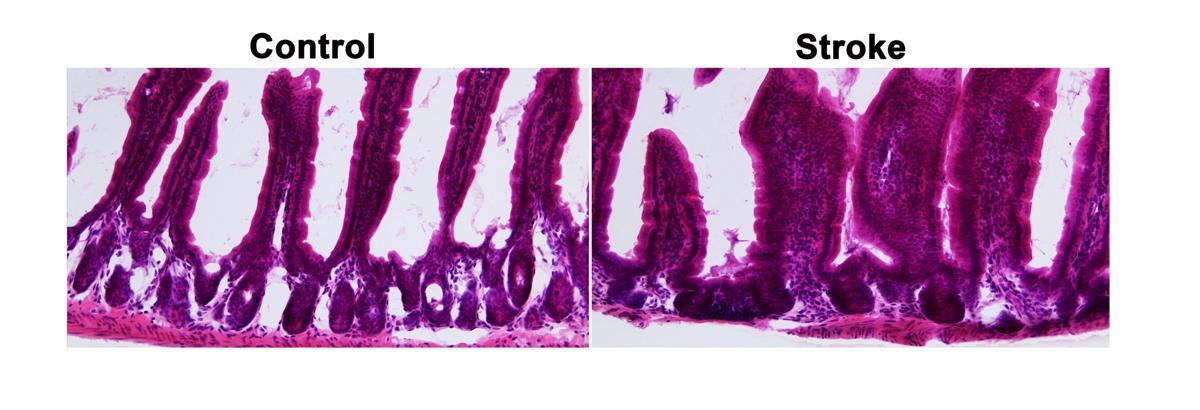 Stroke intestinal tissue model