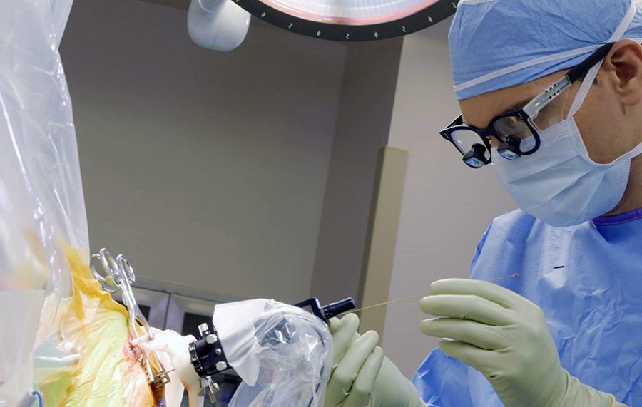 Deep Brain Stimulation operation